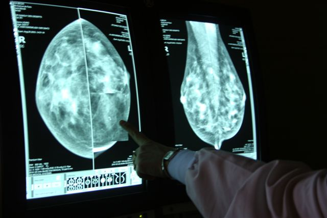 Womens Mammography