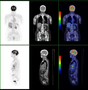A PET scan uses a small amount of a radioactive drug to show differences between healthy and diseased tissue.