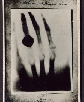 Image of First X-ray