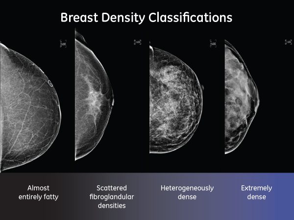 images of dense and fatty breasts