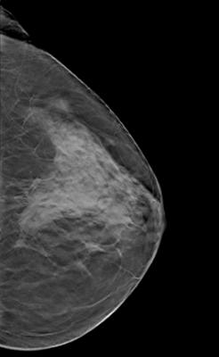 Automated 3d Whole Breast Ultrasound Lake Medical Imaging The